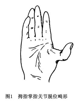 手指扭伤,手指强力背屈等可引起掌指关节脱位,多见于拇指和示指.图片