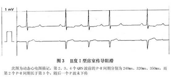 电路 电路图 电子 设计图 原理图 553_249